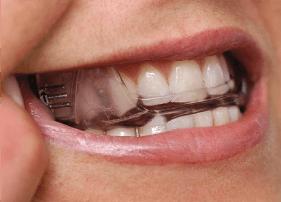 dental device for sleep apnoea