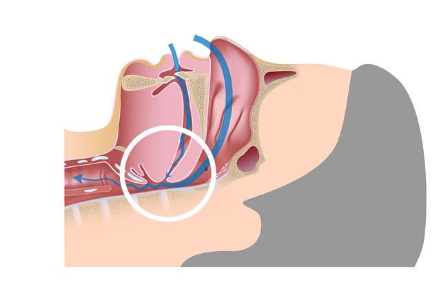 Sleep apnea diagram hypopnea snoring