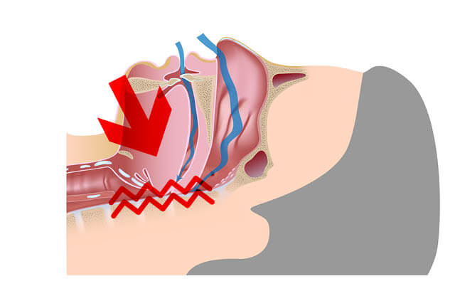 sleep aponea diagram restricted breathing